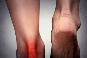 Achillespeesontsteking